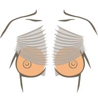 Geweldig; kliniek Veldhoven – borstvergrotingen